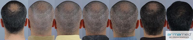 Haartransplantation nach 4 5 monaten